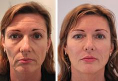 Juvederm Voluma XC the New filler FDA approved to add volume to cheeks, lift face, & last 2 YRs. Juvederm Voluma XC is available at Orlando medspa Winter park Laser Cheek Fillers, Botox Fillers, Dermal Fillers, Facial Yoga Exercises, Relleno Facial, Sagging Face, Natural Face Lift, Face Yoga, Face Wrinkles