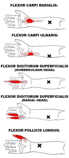 Acupuncture The wrist flexors are six muscles in the front of the forearm that act on the wrist and finger joints. As a group, their primary action is wrist flexion. Muscle Anatomy, Body Anatomy, Trigger Point Therapy, Human Anatomy And Physiology, Medical Anatomy, Occupational Therapist, Trigger Points, Massage Therapy, Physical Therapy