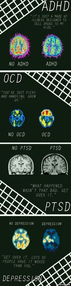 ADHD, OCD, PTSD and Depression are serious mental disorders and require therapy to learn how to cope Mental Disorders, Mental Health Awareness, Ptsd Awareness, Mental Health Stigma, Social Work, Mental Illness, In This World, Just In Case, Play Therapy