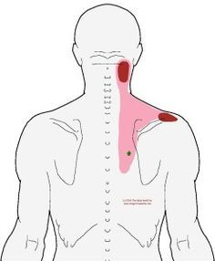 Understanding Trigger Points - Neck Pain with Sore Shoulder