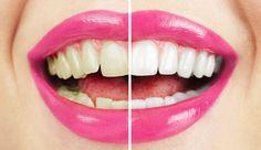 hydrogen peroxide teeth whitening unwanted effects - Is Teeth Whitening Safe? Teeth Whitening Remedies, Natural Teeth Whitening, Whitening Kit, Hydrogen Peroxide Teeth, Cosmetic Dentistry, Dr Oz, Perfect Smile, Dental Care, White Teeth
