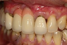 A2.5{漸層色}12 11我們設計牙,氧化鋯優植美全瓷冠,切端透明加燒瓷G1假牙肉,舌側留小鋯珠,,患者選這牌子,13 21是同學設計牙,金屬瓷牙以後患者考慮換優植美全瓷牙冠,這案件在高雄市區,優植牙體技術所,06-2461183,0912057771,在 YouTube 上觀看「優植美全瓷牙(鋯)冠All-Ceramic Crowns,06-2461183名牌牙」 優植美全瓷牙(鋯)冠All-Ceramic Crowns,+886-6-2461183名牌牙E.mail:liang.ye.tooth@gmail.com:http://youtu.be/wB7YlUzR9l0