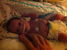 When Nursing Your Preemie Doesn't Work Out by Kristin Beuscher