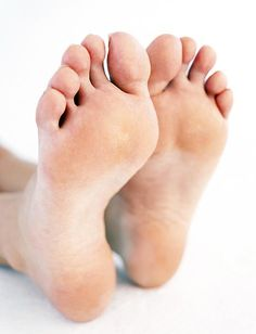 varicose foot fool folk