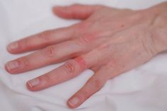 Nickel dermatitis Good to know Polyester allergy Skin