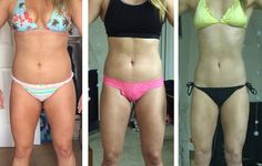 6 Women on What It's REALLY Like to Lose a Lot of Weight