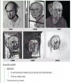 Self Portraits Made By An Artist With Alzheimer's…The Progression Of Such A Cruel Disease…💖❤️🐾🙏😪🙏🐾❤️💖 Cassandra Calin, Sad Stories, My Demons, Wow Art, Faith In Humanity, Claude Monet, Oeuvre D'art, Amazing Art, Awesome