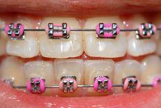Top 3 Colors for Braces This Summer – Dr Darrell Spilsbury pink color braces - Pink Things Braces Bands, Braces Tips, Pink Braces, Cute Braces Colors, Teeth Images, Getting Braces, Brace Face, Dental Braces, Braids For Black Hair