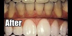 Natural Teeth Whitening Tips, Tricks and Methods - Here you will find one of the best collections ever of all natural methods to clean your teeth super white and clean. Beauty Tips For Hair, Beauty Secrets, Beauty Hacks, Diy Beauty, Teeth Whitening Remedies, Natural Teeth Whitening, Stained Teeth, Happy Skin, White Teeth