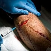 How to Stop Bleeding and Treat a Flesh Wound | eHow -- I just don't know what website will be most helpful (even though I'm reading as much as I can xP) I'm pinning as much as I can, just so that I'll have it. (if anyone has a good place to look at that shows medical things. Stuff about doctors from the victorian era or just stuff about sugery, wounds or bleeding in general, if you could comment with it, it'd be a great help to my research :3)