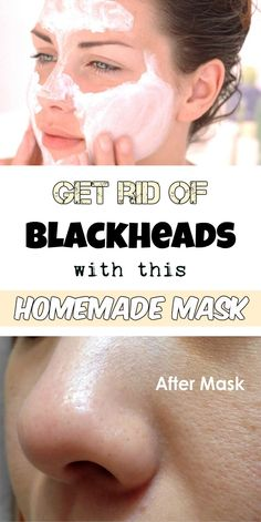 Get rid of blackheads with this homemade mask! - BeautyZone.info