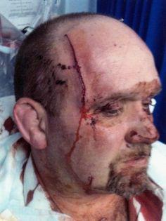knife slash wounds - Google Search