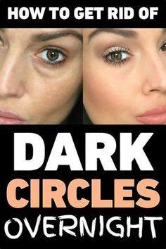 How to Get Rid of Dark Circles Overnight – Best Remedies for Every Cause
