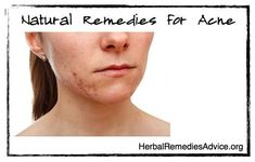 This article looks at natural remedies for acne, how to prevent acne, herbal acne treatment and vitamins for acne. Rather than simply cutting and pasting information from other sites about using herbs like drugs (in a simple this-for-that manner), this article illustrates how a holistic approach can help you find the root cause of your acne so you can find a long-lasting natural solution. #AboutAcneTreatments
