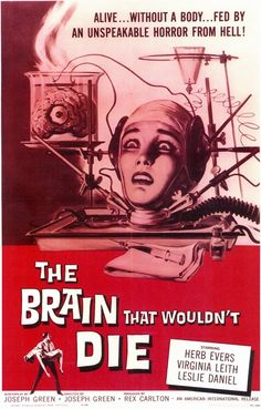 The Brain That Wouldn't Die (1962) Image from Imdb