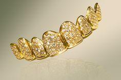 Dentadura más cara del mundo: Oro y diamantes