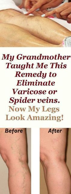 Grandmother Taught Me This Remedy to Eliminate Varicose or Spider veins. Now My Legs Look Amazing! Varicose veins are unaesthetic dilated veins otherwise known as spider veins which are a clear sign of poor blood circulation. Natural Home Remedies, Natural Healing, Holistic Healing, Natural Oil, Fitness Workouts, Workout Routines, Fitness Tips, Varicose Vein Remedy, Varicose Veins Treatment