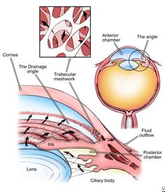 Elevated eye pressure is caused by a build-up of fluid (aqueous humor) inside the eye because the drainage channels (trabecular meshwork) cannot drain it properly. Elevated eye pressure can cause optic nerve damage and vision loss.