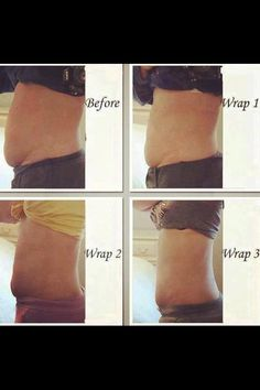 After stretch marks loss and before weight