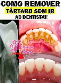 Como Remover o Tártaro sem ir ao Dentista! How To Remove, Peach, Ethnic Recipes, Beauty, Food, Clean Teeth, Tooth Pain, Natural Remedies, Baking Soda