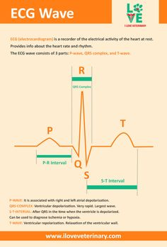 The ECG Wave Explained