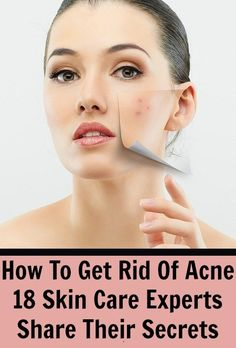 It said: How To Get Rid Of Acne – 18 Skin Care Experts Share Their Secrets