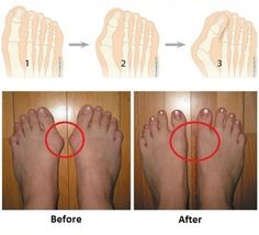 Easy Recipes for Bunions