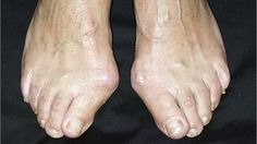 Bunions: blame family, not footwear--The risk of developing bunions - bony growths on the big toe - is linked to your family, not your shoes, a US study has shown.