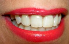 Aktivni ugalj za zube lilly