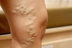 Varicose veins are quite common and seem to affect more women than men. Women dread this condition as it looks quite unsightly on bare legs. Varicose veins are Varicose Veins Causes, Varicose Vein Remedy, Nasal Congestion, Natural Home Remedies, Natural Healing, Natural Treatments, The Cure, Remover, Cama Box