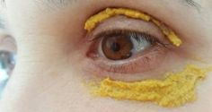 Put Turmeric Around Your Eyes and See the Amazing Change After 5 Days