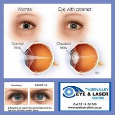 Vision Problems with Cataracts If you have a cataract your lens has become cloudy like the bottom lens in the illustration. It is like looking through a foggy or dusty car windshield. Things look blurry hazy or less colorful with a cataract.