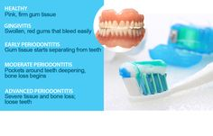 The more gum disease progresses, the more damage it does. Please brush and floss. And if you haven't had a checkup this year, call us at to schedule an appointment. Sedation Dentistry, Implant Dentistry, Dental Health, Dental Care, Loose Tooth, Can I Eat, Dental Facts, Bone Loss, Best Dentist