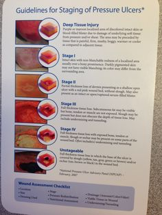 Staging Pressure Ulcers