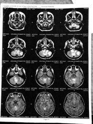 Meet the Teen Who Beat Terminal Brain Cancer with Cannabis | Alternet
