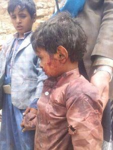 #اليمن | الأمم المتحدة: مقتل وإصابة 11 ألف شخص خلال نزاع اليمن