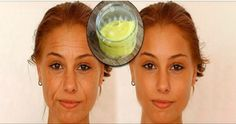 Karbonat Kullanın ve 10 yaş gençleşin - Bilge Cafe Age Spots On Face, Pele Natural, Baking Soda Face, Eye Wrinkle, Les Rides, Anti Aging Treatments, Aging Process, Best Anti Aging, Tips Belleza
