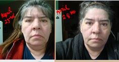 6 days using Luminesce Cellular Rejuvenation Serum Serum, Skin Care, Day, Skincare Routine, Skins Uk, Skincare, Asian Skincare, Skin Treatments