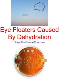 Floaters caused by masturbation — img 6
