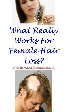 hair loss prevention woman natural home remedy, Natural solutions to avoid hair loss and advertise hair development #CoconutOilAndHairLoss #BiotinForHairLoss