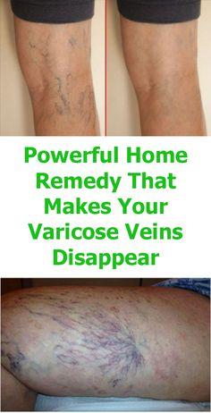 Powerful Home Remedy That Makes Your Varicose Veins Disappear