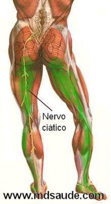 Dor no nervo ciático