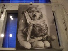 chernobyl birth defects pictures - Google Search
