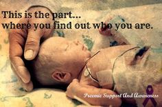 No one will ever know what it meant to experience your baby at the NICU unless you've done it yourself.