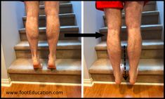 The Achilles tendon is subject to high forces with each step and therefore subject to wear-and-tear damage. There are many pathological conditions that affe Insertional Achilles Tendonitis, Stretching Program, Homemade Body Care, Calf Muscles, Disorders, Health, Exercises, Medicine, Ankle