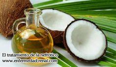 ?Pueden los pacientes con insuficiencia renal tomar aceite de coco? En cuanto a esta pregunta, en realidad no hay una respuesta exacta, como condición de la enfermedad del paciente con insuficiencia renal varía mucho de un caso a otro