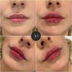 Dermal Fillers Lips, Facial Fillers, Botox Fillers, Lip Fillers, Best Makeup Tutorials, Best Makeup Tips, Best Makeup Products, Botox Lips, Metallic Eyeliner