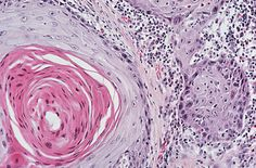Histological tissue section from a sample of lung squamous carcinoma.