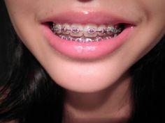 Dental Braces For Kids
