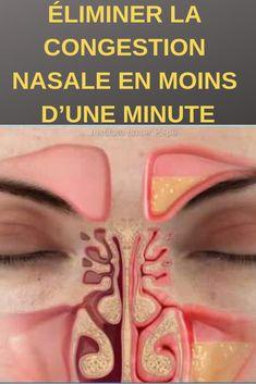 En fonction de l'origine de la congestion nasale, nous devons trouver un moyen efficace de la combattre et de venir à bout de ce symptôme. Grâce à une technique d'acupression nous pouvons soulager la congestion nasale en seulement quelques minutes.